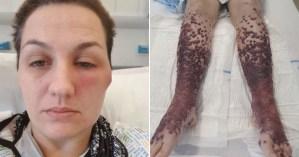 Las piernas de una mujer se llenaron con ampollas de sangre tras recibir la vacuna contra el Covid-19 (Imágenes sensibles)