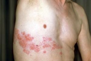 Aparición de herpes puede estar vinculada a la vacuna contra el Covid-19, según estudio