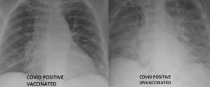 Radiografías de pulmón revelaron diferencias entre un vacunado contra el Covid-19 contagiado y otro sin inoculación (FOTO)